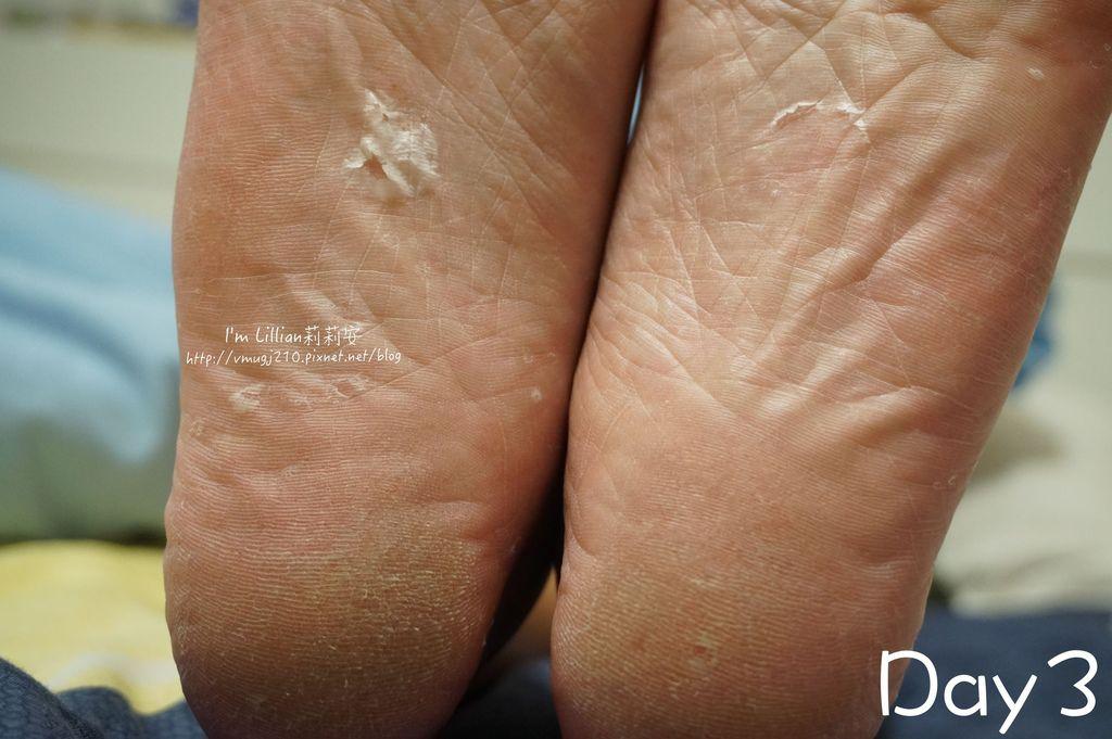 6去腳皮推薦 FoottyFootty杏仁牛奶酸足膜132腳膜推薦.jpg