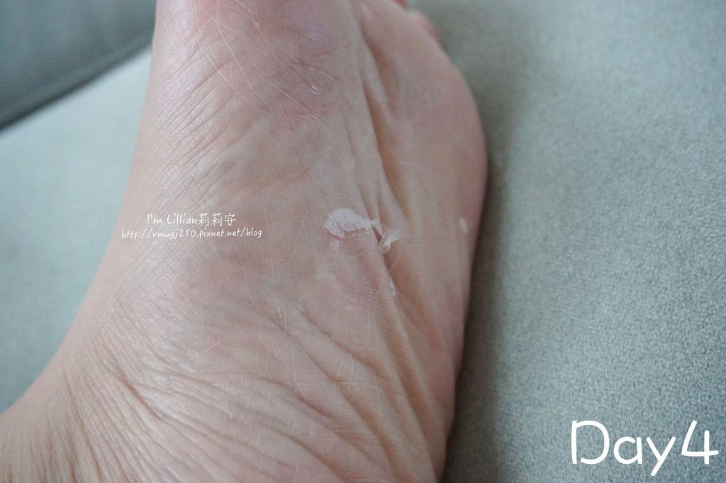 9去腳皮推薦 FoottyFootty杏仁牛奶酸足膜144腳膜推薦.jpg