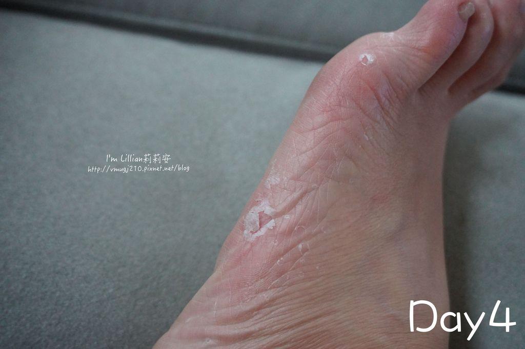 11去腳皮推薦 FoottyFootty杏仁牛奶酸足膜146腳膜推薦.jpg