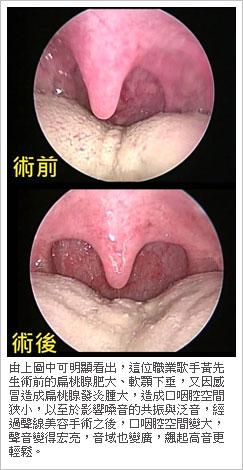 口咽共鳴腔的擴大手術是聲線美容手術的重點