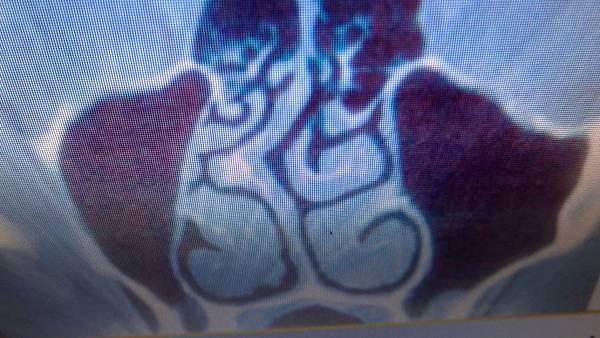 鼻中膈彎曲合併骨刺