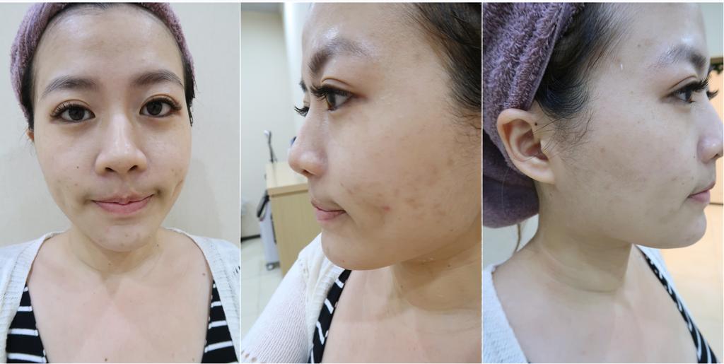 靚世紀美容師拍術前照片,痘疤真的超明顯而且膚色不均
