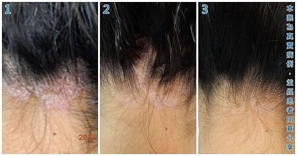 頭皮乾癬文章20170703-01