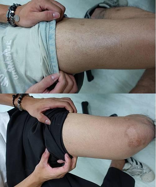 魚鱗癬放部落格照片腿部1