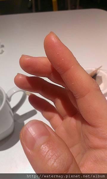 被龍蝦刺傷的手