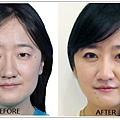 雙眼皮術前術後