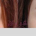 渾然天成聯合整形診所_ 隱形雙眼皮手術006