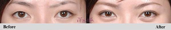 渾然天成聯合整形診所_ 隱形雙眼皮手術002