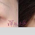 渾然天成聯合整形診所_ 隱形雙眼皮手術003