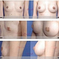 隱形隆乳案例