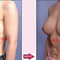 乳房提拉手術案例