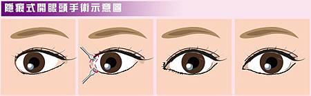 隱痕開眼頭手術作法示意圖