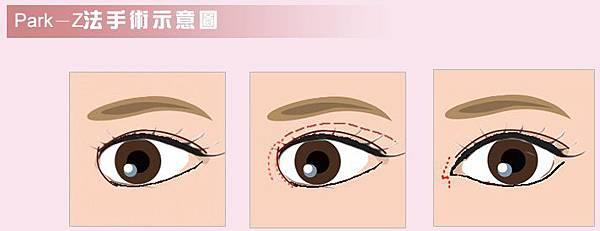 Z開眼頭手術作法示意圖