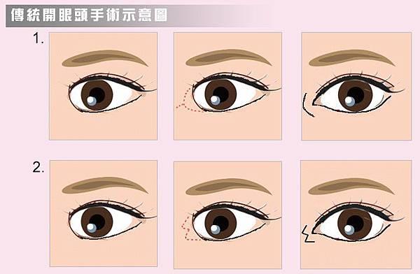 傳統開眼頭手術作法示意圖