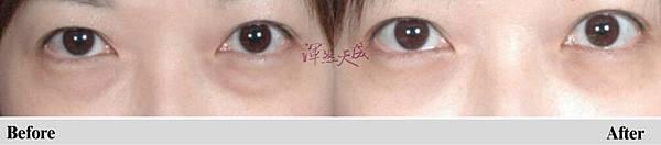 雙眼皮1_副本