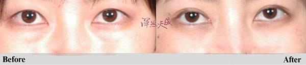 雙眼皮2_副本