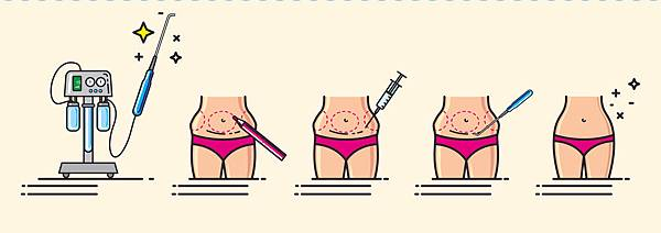 Liposuction-surgery-in-korea.jpg