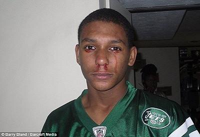 17歲泣血男孩1
