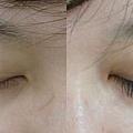 相片對照-種睫毛初體驗