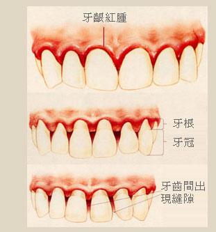 teeth_pt03