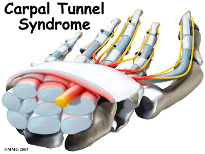 hand_carpal_tunnel_intro01