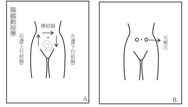 腹腔手法圖.jpg