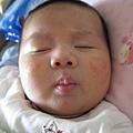 081123-新生兒痤瘡