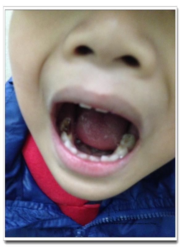 1030213~三個月例行檢查看牙齒
