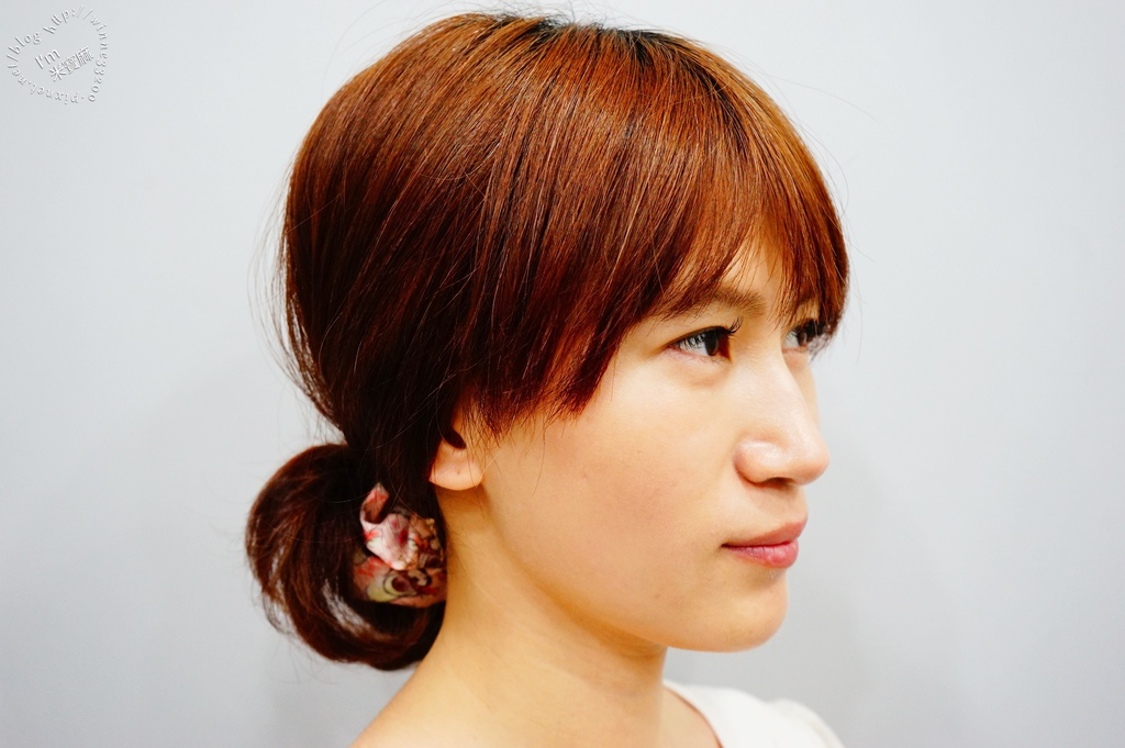 悠美診所肉毒小臉_1