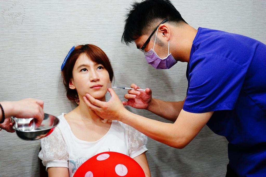 悠美診所肉毒小臉_7