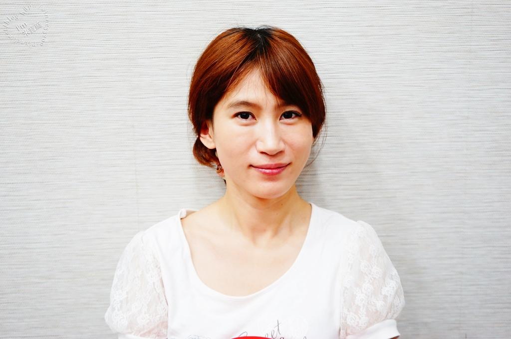 悠美診所肉毒小臉_11