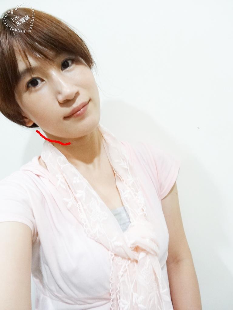 悠美診所肉毒小臉_21