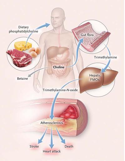 腸道細菌代謝奶蛋魚的卵磷脂增加心血管疾病風險