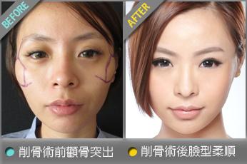 beautychange_bonebomei01.jpg