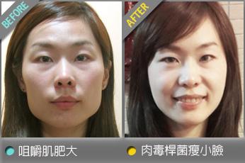 beautychange_botox01.jpg