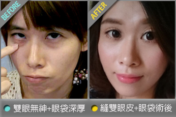 beautychange_eyetintin01.jpg