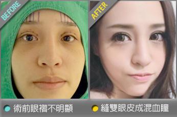beautychange_eyetintin02.jpg