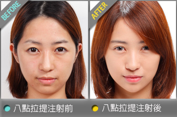 beautychange_acid8yvonne01.jpg