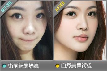 beautychange_nosecc01.jpg