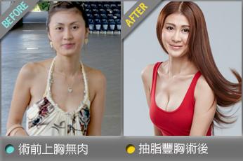 beautychange_lipomimisunny01.jpg