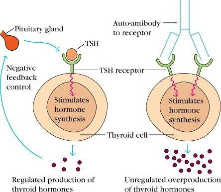 graves-disease-hyperthyroidism-antibody-picture