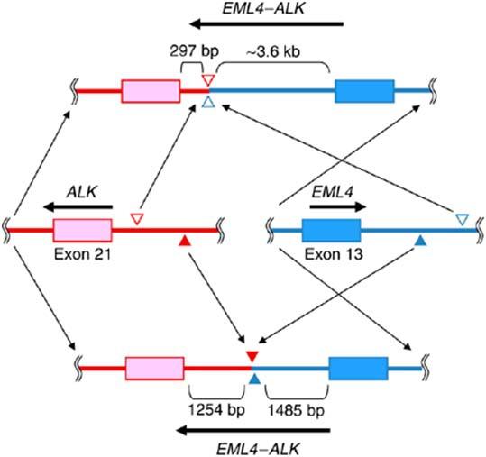 EML4-ALK