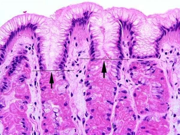 Surface epithelium of gastric mucosa拷貝