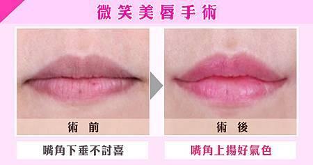 《葳美時尚美學-柳元敏》圖片:打造女神級性感豐唇 3步驟訂做專屬甜美笑容.jpg