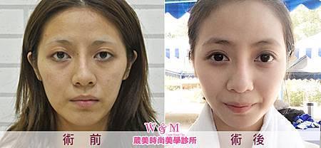 案例照-全臉補脂BA(650X300P)-2.jpg
