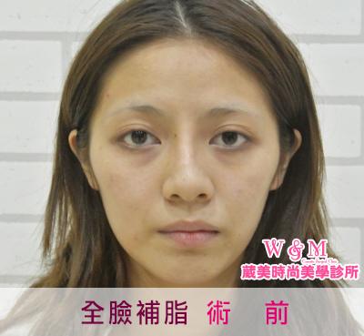 案例照-全臉補脂01+字.jpg