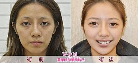 案例照-全臉補脂BA(650X300P).jpg