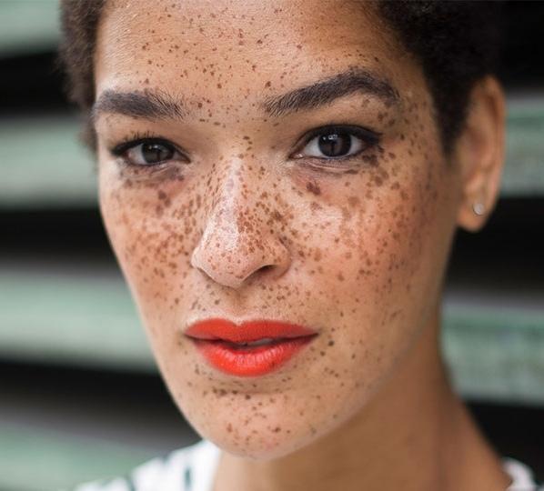sunspots-freckles.jpg