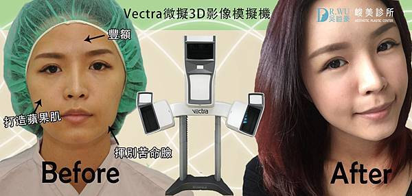 峻美診所模擬機自體脂肪補脂