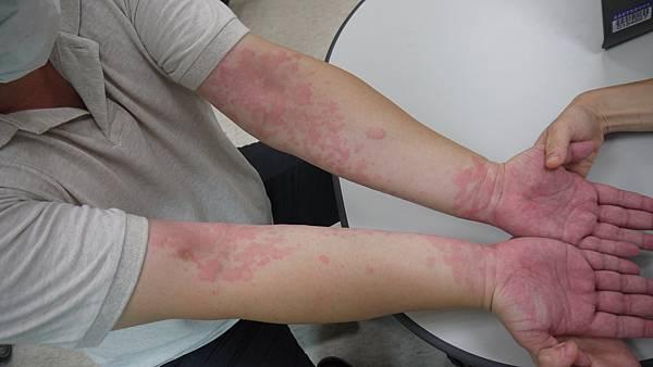 20131004-連掌心都是紅疹, 奇癢難耐_All